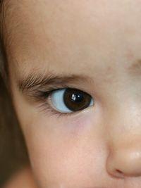 Toddler-eye